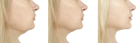 woman chin before and after procedure retouching