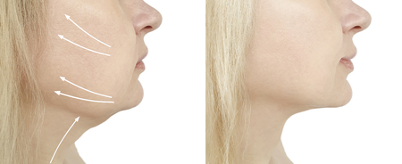 woman double chin before and after procedures, oval Stock Photo