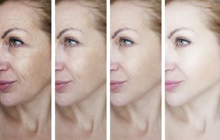 arrugas en los ojos femeninos antes y después de los tratamientos Foto de archivo