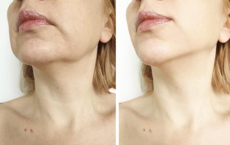 sollevamento del doppio mento della donna prima e dopo le procedure