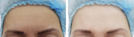 Elderly woman's face wrinkles before and after procedures 写真素材