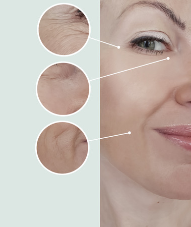 woman wrinkles before and after collage procedures