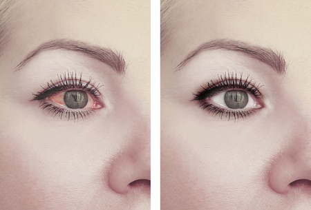 woman red eye before and after procedures Imagens