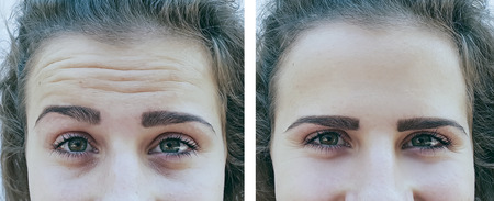 woman face wrinkles before and after procedures Stok Fotoğraf