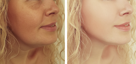 woman wrinkles before and after procedures collage