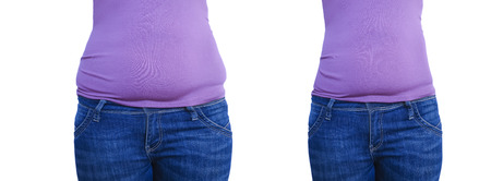 woman belly before and after weight loss