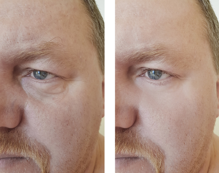 male eyes wrinkles bloating before and after procedures 스톡 콘텐츠