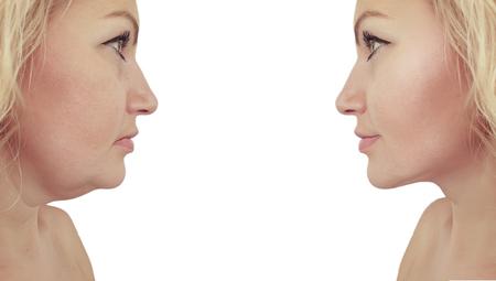 kobieta zwisający podwójny podbródek przed i po Zdjęcie Seryjne