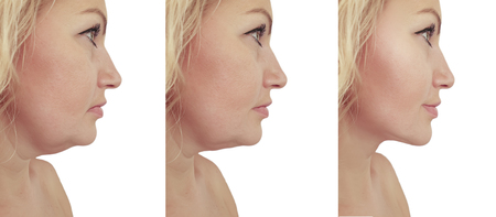 woman double chin sagging before and after