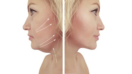mujer papada antes y después de los procedimientos
