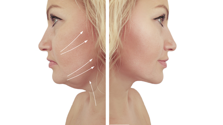 woman double chin before and after procedures