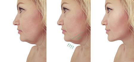 mujer, papada, flacidez, antes y después Foto de archivo