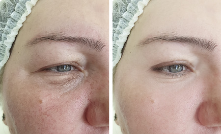 face woman face wrinkles before and after procedures