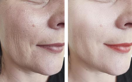 twarz kobiety ze zmarszczkami przed i po kosmetyce