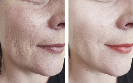 woman wrinkles face before and after beautician Banco de Imagens