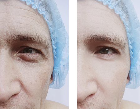 man wrinkles before and after procedures Banco de Imagens