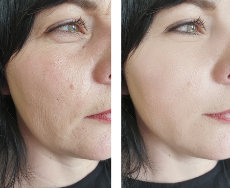 woman face wrinkles before and after treatments Stock fotó