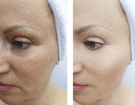 woman wrinkles before and after