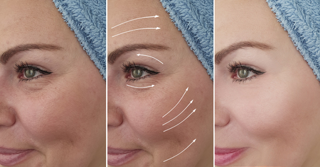womans wrinkles face before and after correction