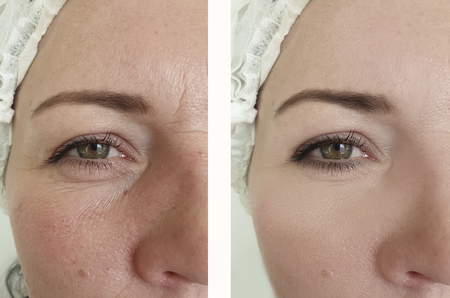 woman wrinkles face before and after correction