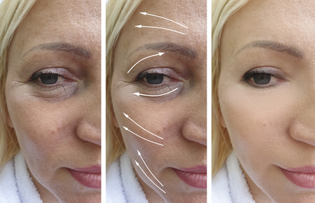 woman wrinkles before and after correction Stok Fotoğraf
