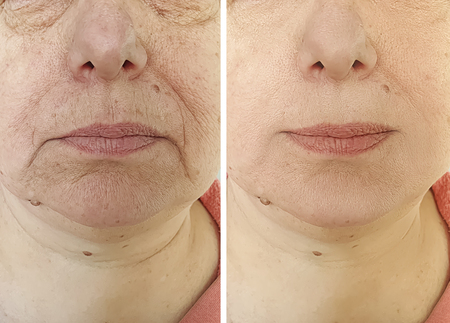 Elderly woman's face wrinkles before and after procedures 写真素材 - 122655791