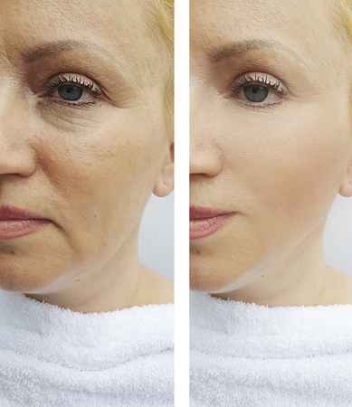 womans wrinkles face before and after