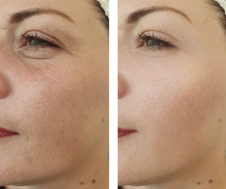 woman wrinkles face before and after procedures,