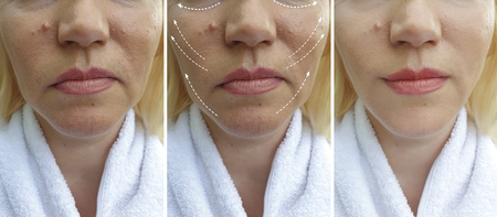 woman wrinkles face before and after procedures Stok Fotoğraf