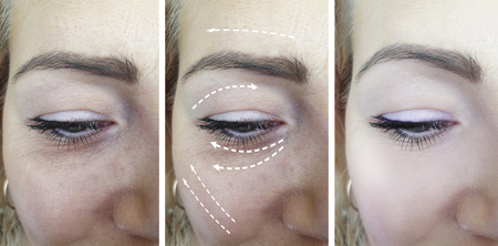 woman face wrinkles before and after treatments