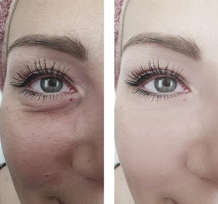 rostro femenino arrugas hinchazón antes y después del tratamiento Foto de archivo