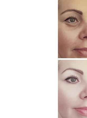Gesichtsfalten der Frau vor und nach der Behandlung