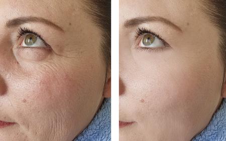 femme rides visage avant et après les procédures