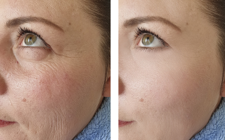 woman wrinkles face before and after procedures Stock Photo