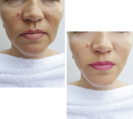 woman face wrinkles before and after correction