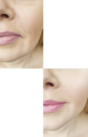 female face wrinkles before and after procedures