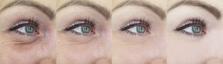 woman wrinkles before and after treatment collage