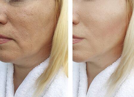 femme visage rides avant et après traitement Banque d'images