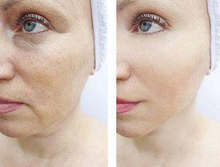 rughe del viso della donna prima e dopo il trattamento