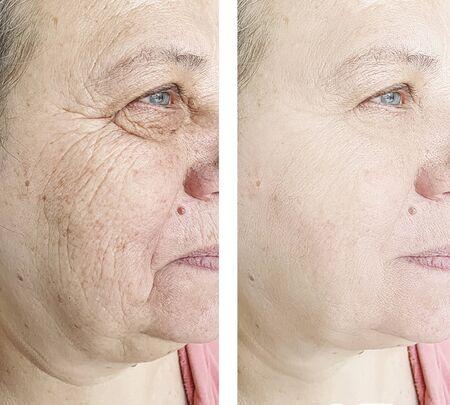 face wrinkles 版權商用圖片