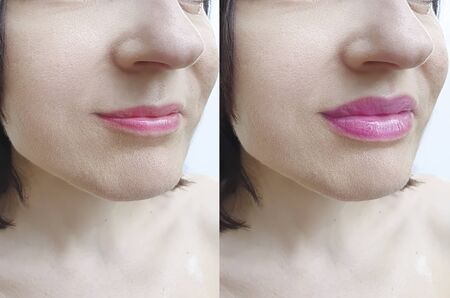 girl lips before and after augmentation procedure