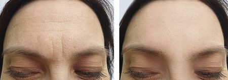 female wrinkles before and after treatment