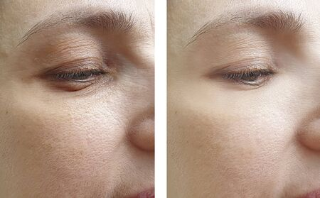 female wrinkles before and after treatment Stockfoto