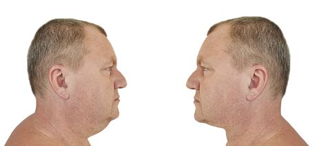 male double chin before and after treatment 版權商用圖片 - 126731496