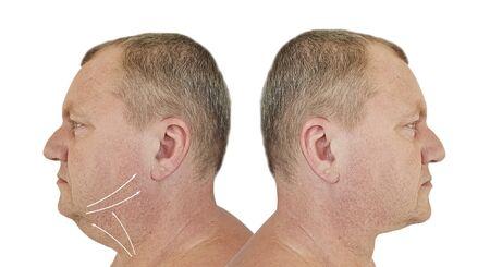 männliches Doppelkinn vor und nach der Behandlung