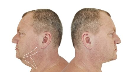 male double chin before and after treatment