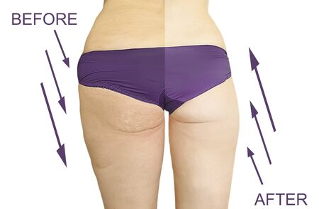 woman overweight before after weight loss