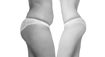 woman overweight cellulite before and after Imagens