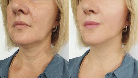 mujer cara arrugas antes y después del tratamiento Foto de archivo