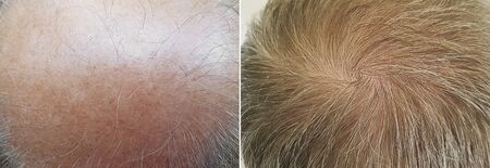 male baldness before and after treatment medicine